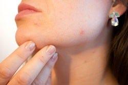 Een onzuivere huid